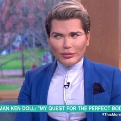 NEWS: Human Ken Doll Can't Breathe Properly, but He isn't Addicted to Surgery