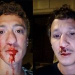 A gay couple were mercilessly beaten while onlookers jeered